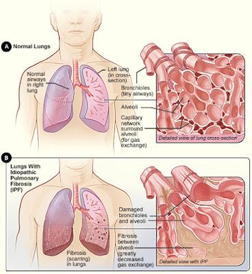gejala-penyakit-pneumonia