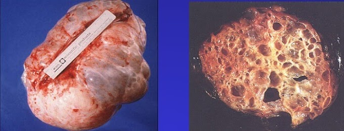 Neoplazm Nedir? Neoplazi Ne Demektir?
