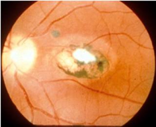 chorioretinitis-in-toxoplasmosis