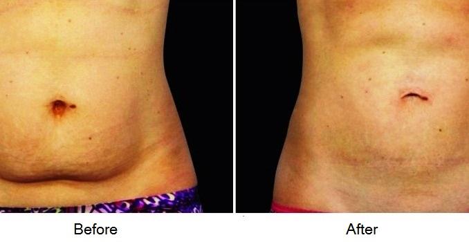 After Pregnancy Skin Care