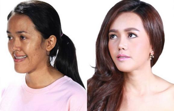 Wajah Wanita Thai Sebelum Dan Selepas Pembedahan Plastik