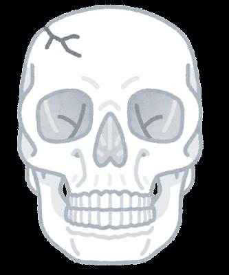 頭蓋骨骨折のイラスト