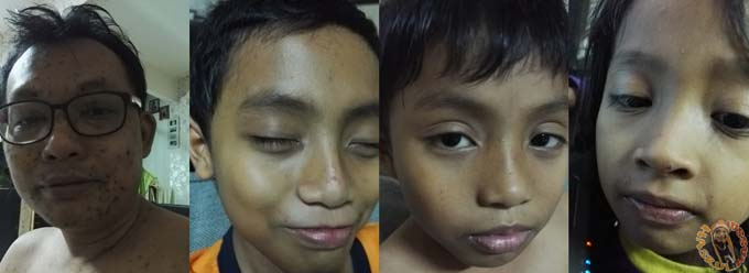Wajah Kena Chickenpox