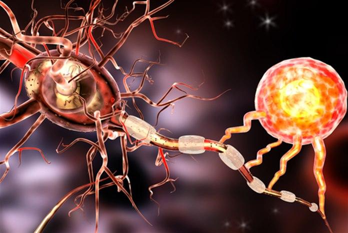 Multiple Skleroz Nedir? Sebebi Belirtileri ve Tedavisi