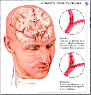 Accidente cerebro vascular hipertensión
