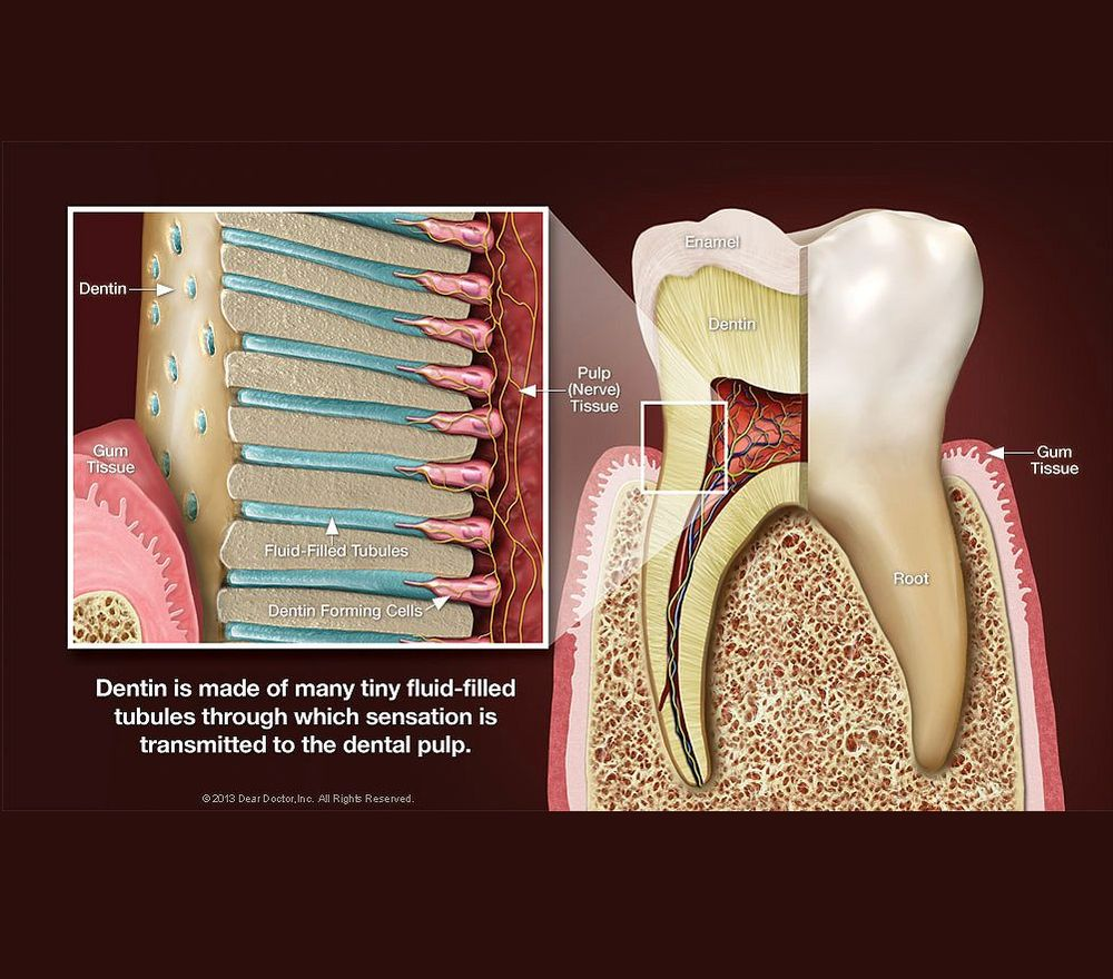 Dental Hypersensitivity