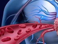5 Makanan Yang Bisa Membersihkan Pembuluh Darah