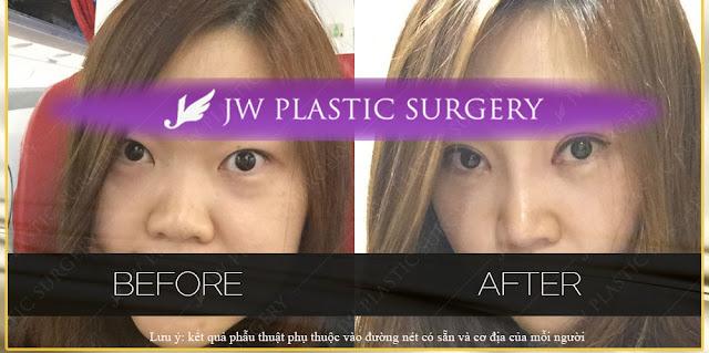 phẫu thuật chỉnh sửa mắt do thẩm mỹ mắt bị hỏng