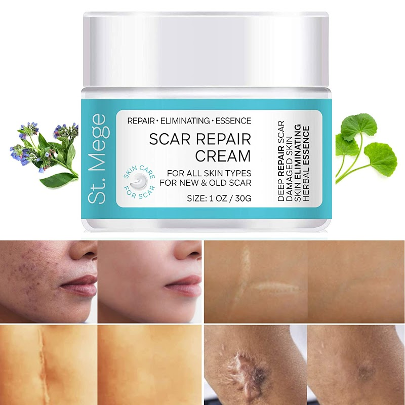 30% OFF Scar Removal Cream, Scar Cream For Old Scars