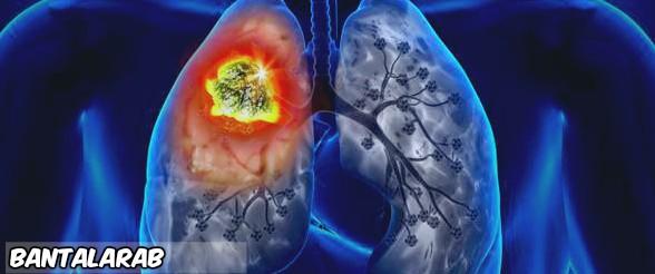 ماهي خطورة سرطان الرئة