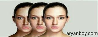 पुराने से पुराने झाइयां दूर करने के उपाय - Hyperpigmentation Treatment