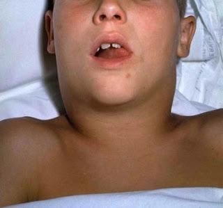 bullneck difteri