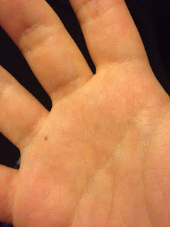 Meaning Of Freckle On Wrist, Hand, Finger As Per Palmistry