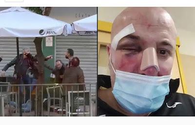 Policías dan una paliza a un hombre en Linares y agreden a su hija de 14 años