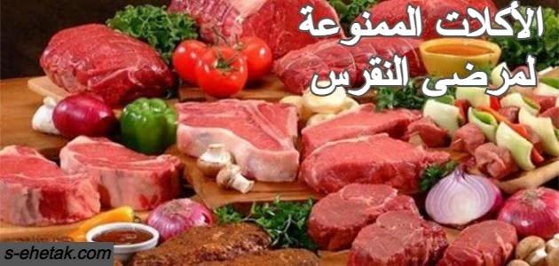 الأكلات الممنوعة لمرضى النقرس
