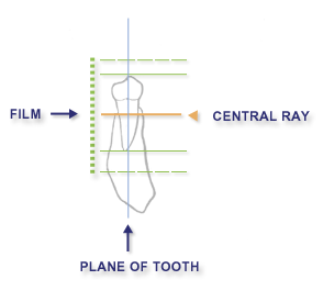 Intraoral radiographic techniques paralleling technique chapter 2 figure 31 ccuart Image collections