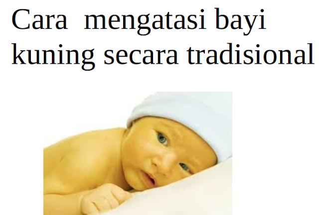 Cara  mengatasi bayi kuning secara tradisional, genpi.net