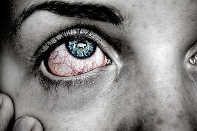 Tips Mengobati Mata Yang Sakit Karena Terlalu Sering Memandang HP, Laptop Dan Lain-Lain