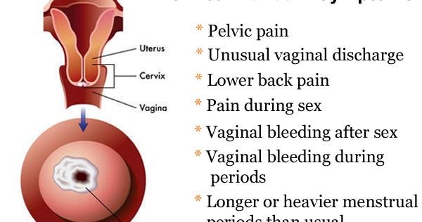 The Health Website  Symptoms Of Cervical Cancer-1887