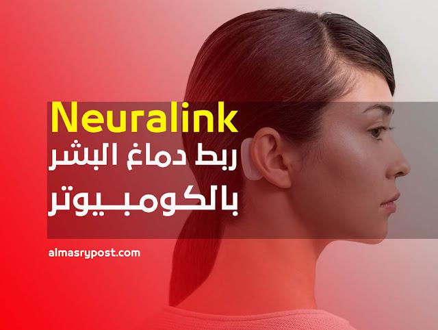 شريحة نيورالينك Nuralink: إختراع إيلون ماسك لربط الدماغ بالكومبيوتر
