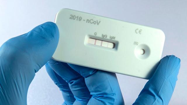 Expertos esperan que los test de anticuerpos permitan saber hasta cuándo es necesaria la cuarentena por coronavirus