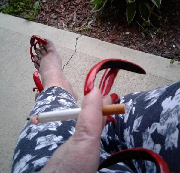 ''Disgusting'' reasons woman can't wear shoes [photos]