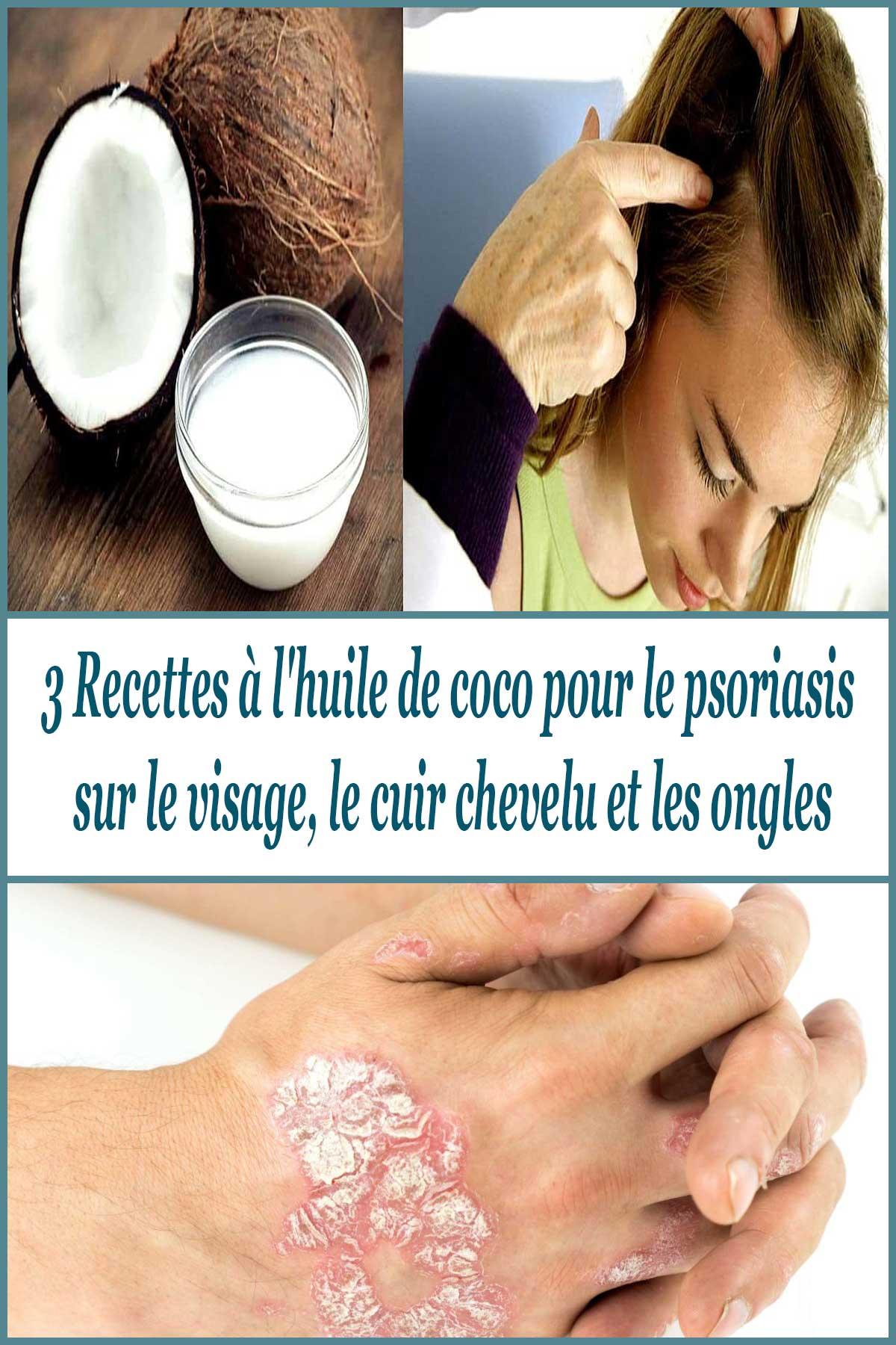 Recettes à l'huile de coco pour le psoriasis sur le visage, le cuir chevelu et les ongles