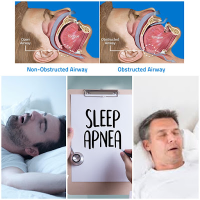 What's The Sleep Apnea?