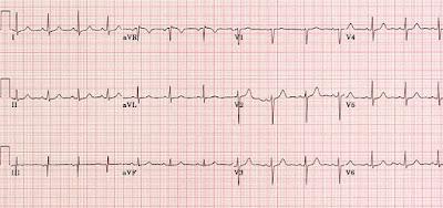 A normal ECG