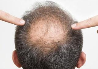تساقط الشعر عند الرجال المعروف بنمط الصلع الذكري , هو سمة وراثية يصيب أكثر من نصف الرجال فوق سن 50.   نحن نعلم جميعاً أنه لا يمكنك دائمًا منع تساقط شعرك وخاصةً مع تقدمك في العمر ، ولكن هناك علاجات قد تساعدك على ذلك
