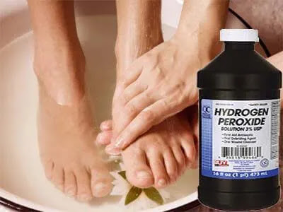 علاج فطريات الأظافر بيروكسيد الهيدروجين