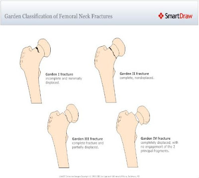 Femoral Neck Fracture Classification