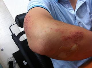 occupational-skin-disease