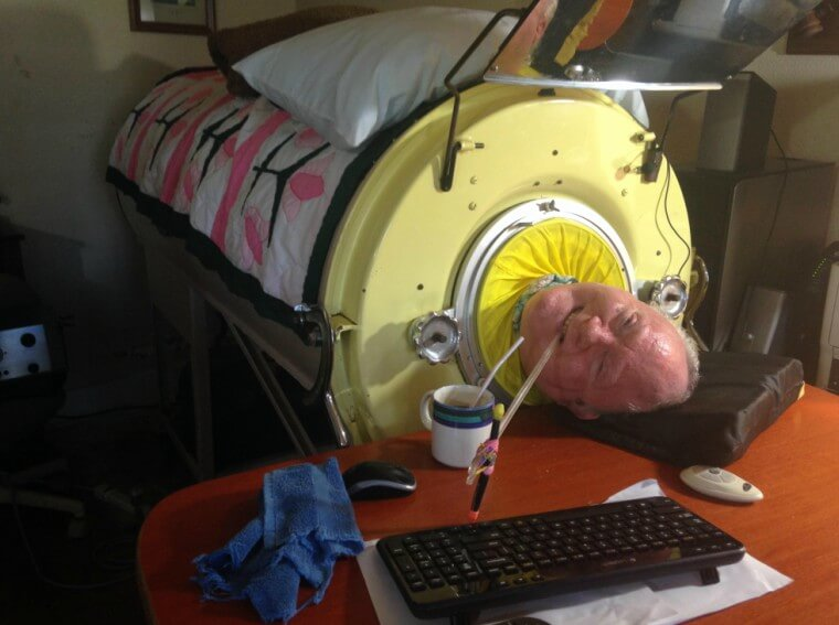 Heartbreaking Story Of Man Who Has Been Locked In A Machine For Over 60 Years