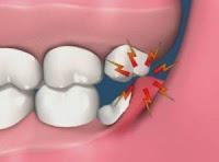 Symptômes douleur dents de sagesse