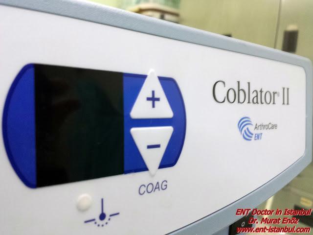Coblation Turbinate Reduction