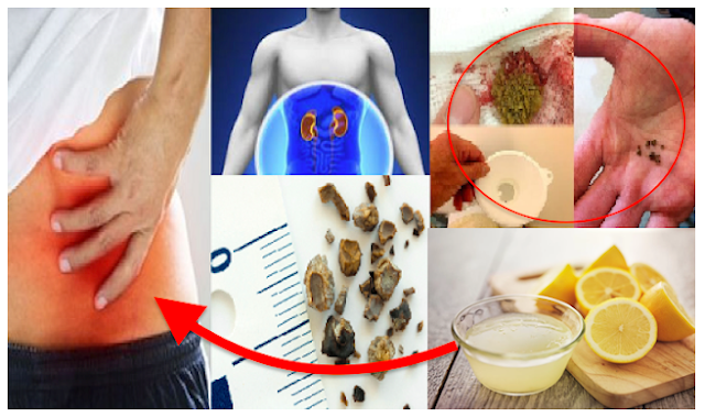 Natural Ways: Remove Kidney Stones By The Use of Lemon Juice.
