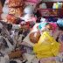 Yasmin Sang Bayi Penderita Tumor Teratoma Butuh Uluran Dermawan