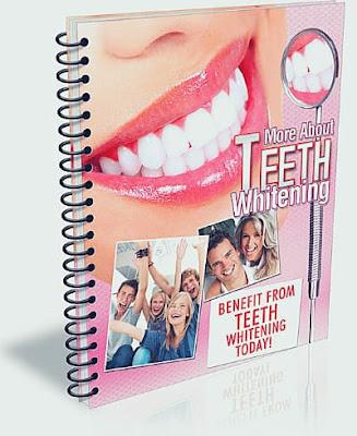 Teeth Bleaching Services