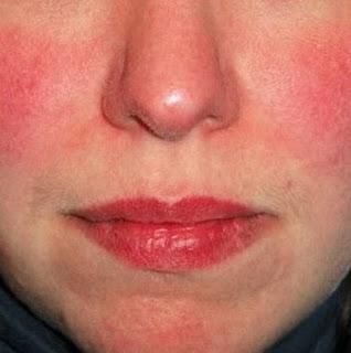 Inilah 20 Penyebab Muka Merah yang Sangat Seringkali Dialami Seseorang