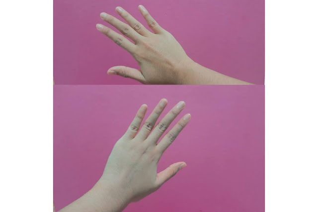 Before & After Pemakaian Scarlett Whitening Body Lotion Freshy