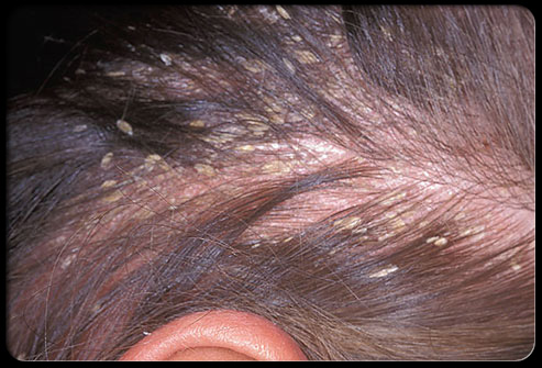 Natural Remedies For Itchy Scalp Black Hair