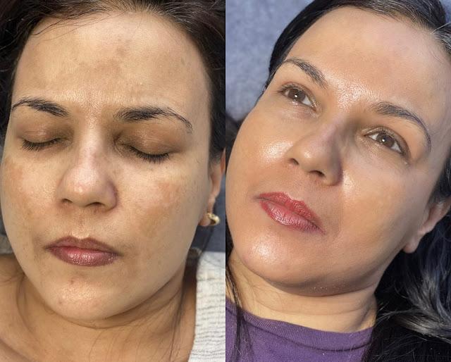 Remèdes maison qui peuvent aider à se débarrasser de l'hyperpigmentation