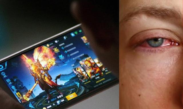 Penjelasan Dokter Tentang Kebutaan Akibat Bermain Smartphone