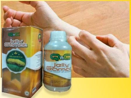 obat penyakit kulit gatal