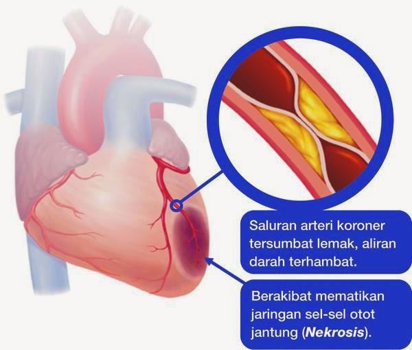 obat penyempitan pembuluh darah jantung