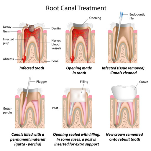 procedure of root canal treatment RCT
