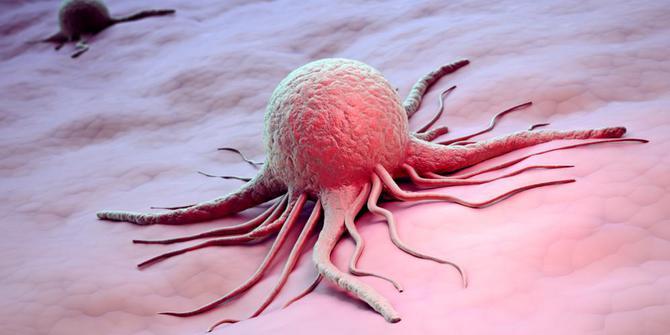 Hasil gambar untuk penyakit kanker