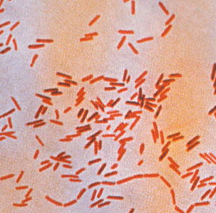 Infection Landscapes Typhoid Fever