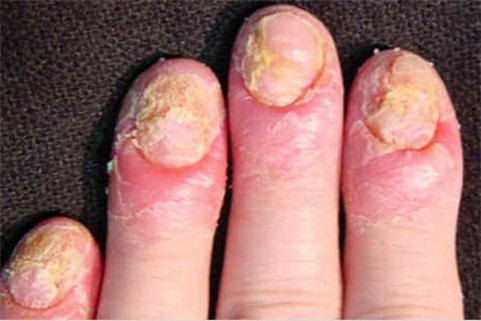 El Mundo De Angie Nails Las Uñas Y Los Chinos
